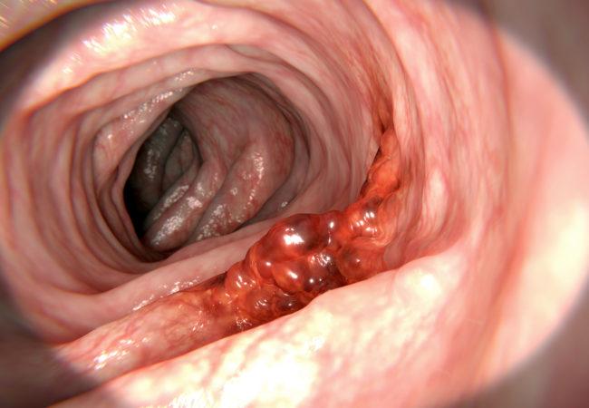 Kolorektal Kanser Tedavisinde Yeni İlaç Kombinasyonu: Trametinip ve Zoledronat