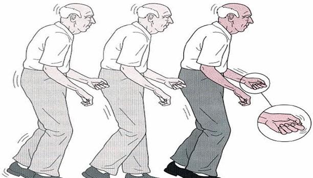 Parkinson Tedavisine Yardımcı Olacak Yeni Bir Bileşik mi Bulundu
