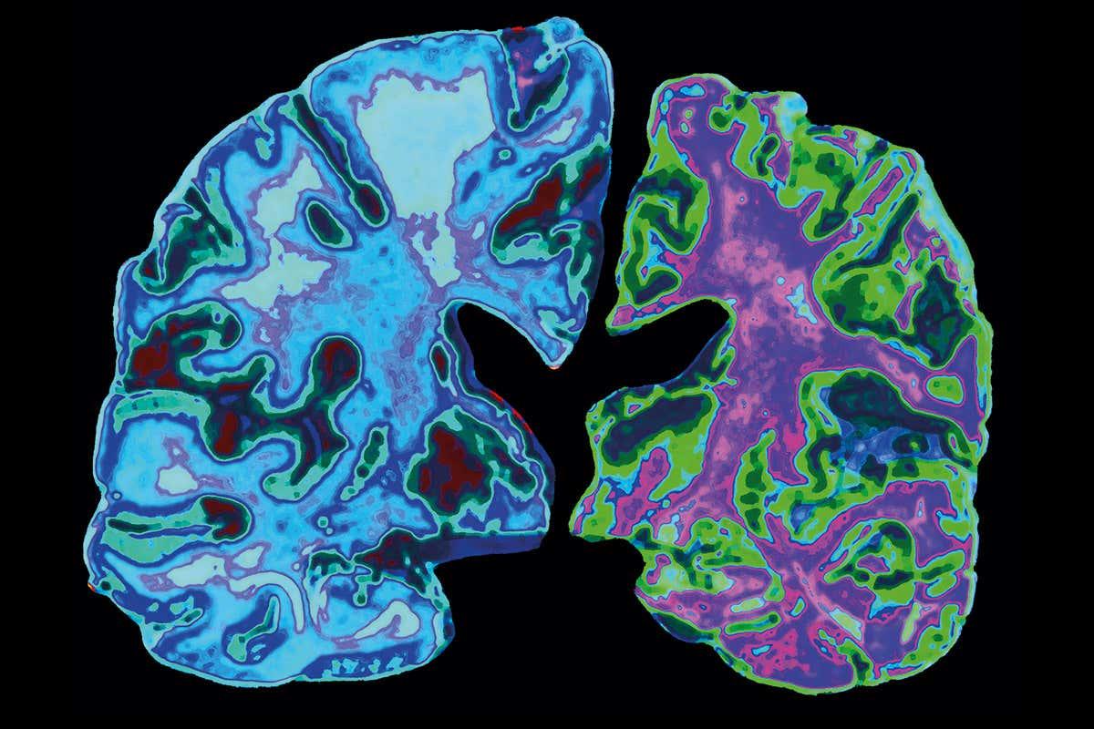 Dişlerinizi Fırçalamak Sizi Alzheimer'a Karşı Koruyor Olabilir!