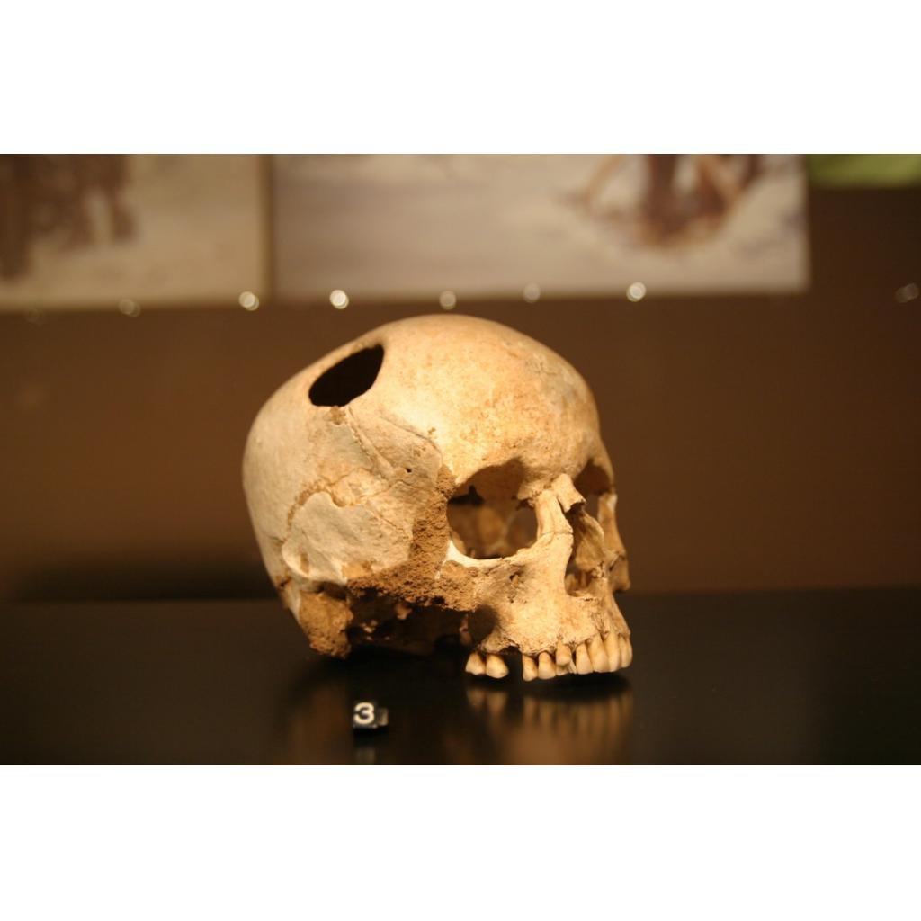 Delikli Kafatasları ve Trepanasyon