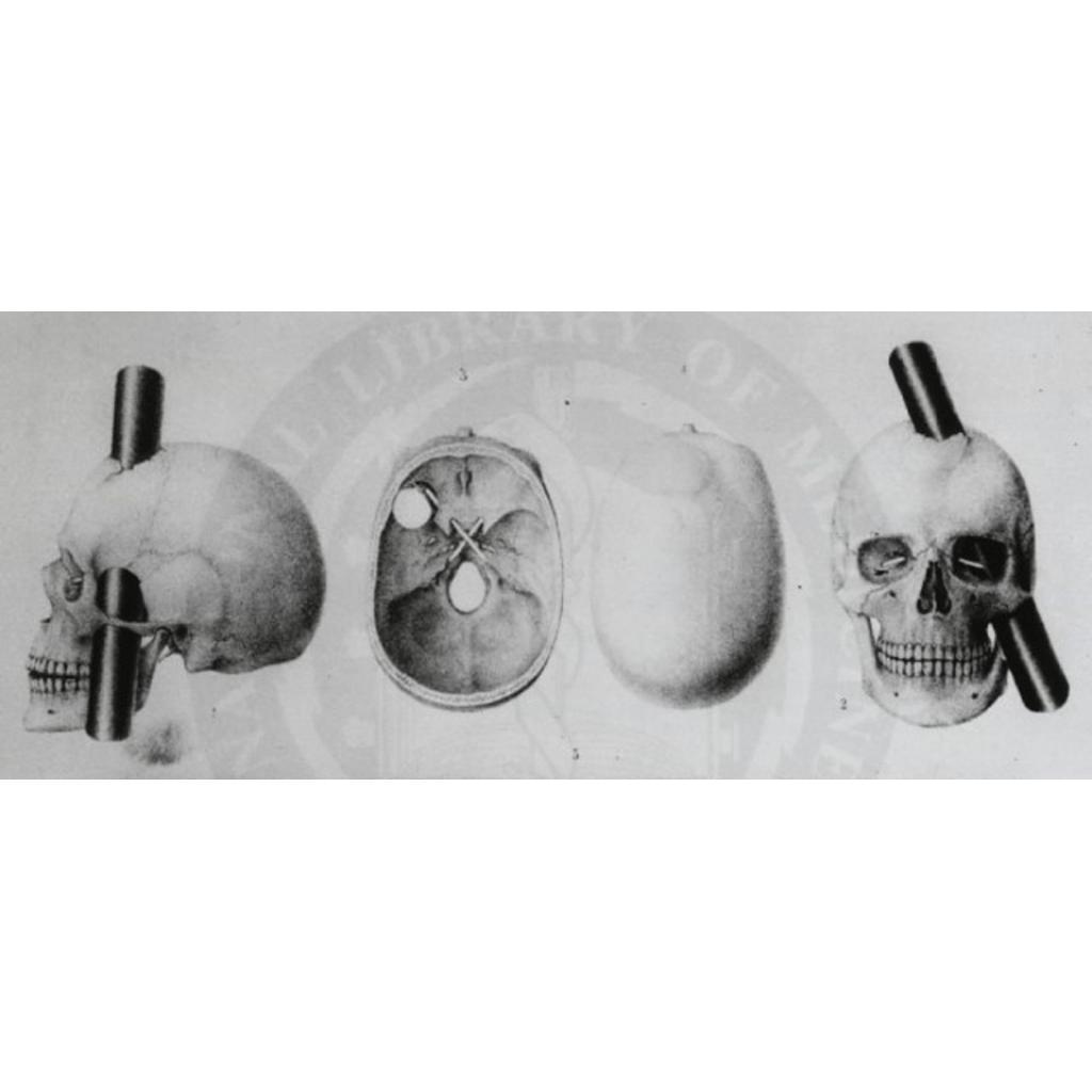 Şekil 1. Demir çubuğun kafatasında izlediği yolun şematik gösterimi.