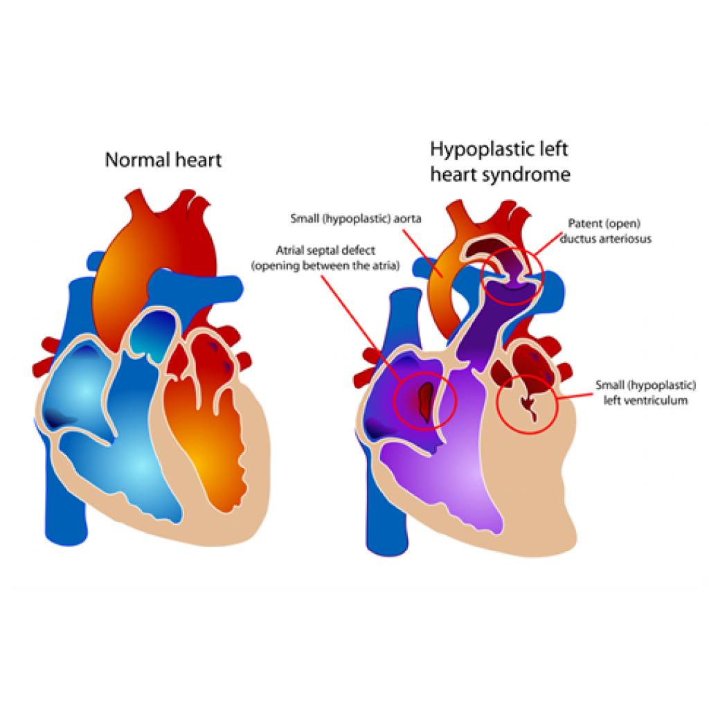 Tek Ventrikülle Yaşam: Hipoplastik Sol Kalp Sendromu