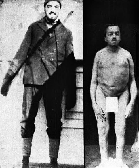 Kaptan Martell'in hastalıktan önceki ve sonraki görünümü